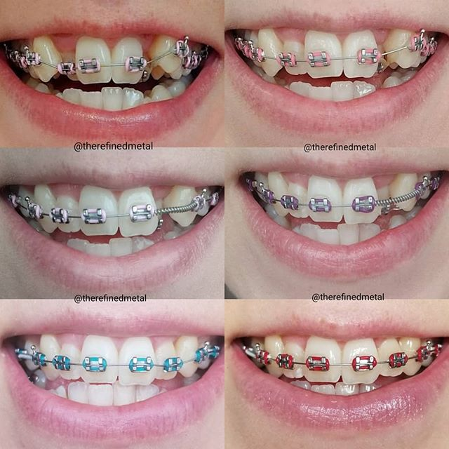 Braces Colors Which One Is Best For You Braces Explained
