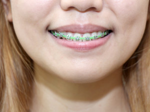 Clean-Teeth-With-Braces-Step-11