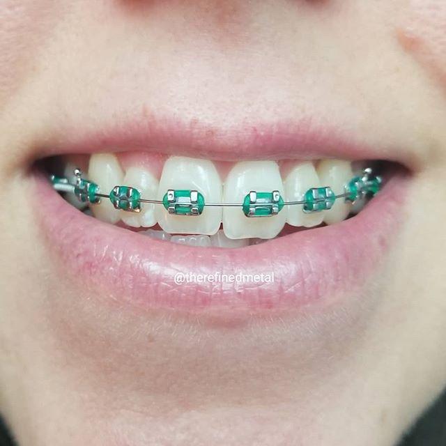 Low Cost Dental Insurance >> best teal braces – Braces Explained