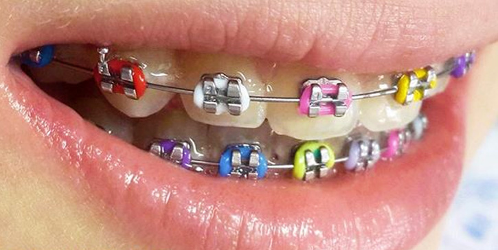 The Best Braces Colors For Girls To Wear