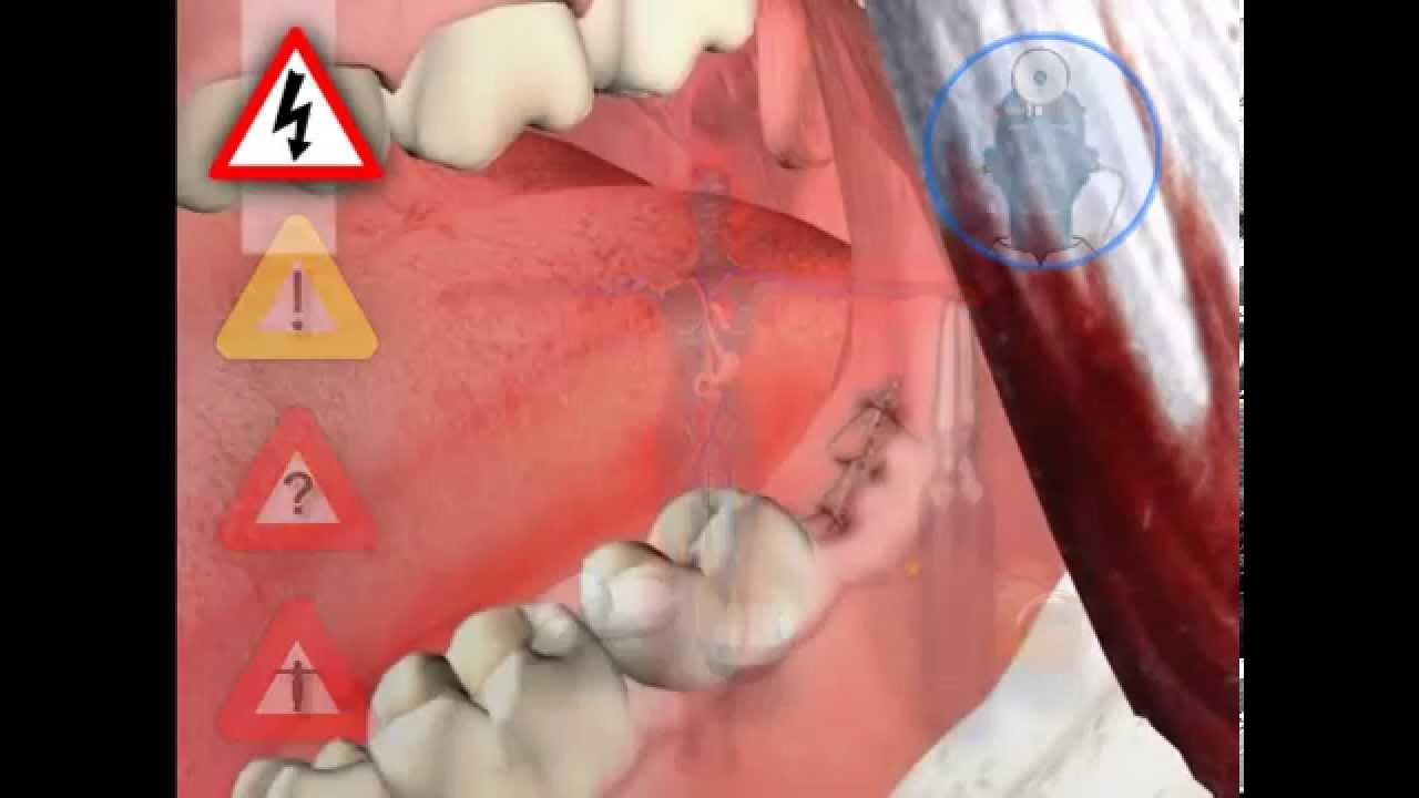 How Much Will Wisdom Teeth Removal Cost Me - Braces Explained
