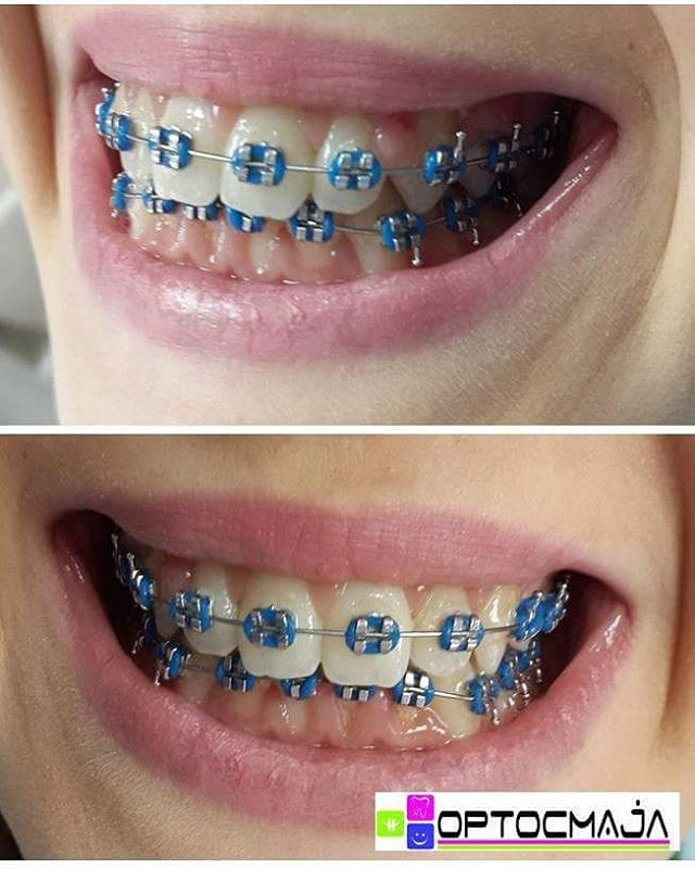 10 Colored Blue Braces For Adults And Kids Braces Explained