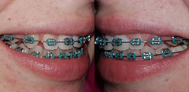 How To Pick The Best Teal Braces For Your Teeth Braces Explained