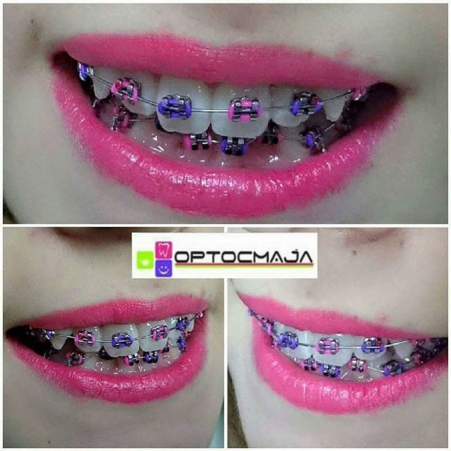 10 Colored Pink Braces For Charming Teenage Girls Braces Explained