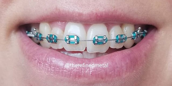 How to pick the best teal braces for your teeth?