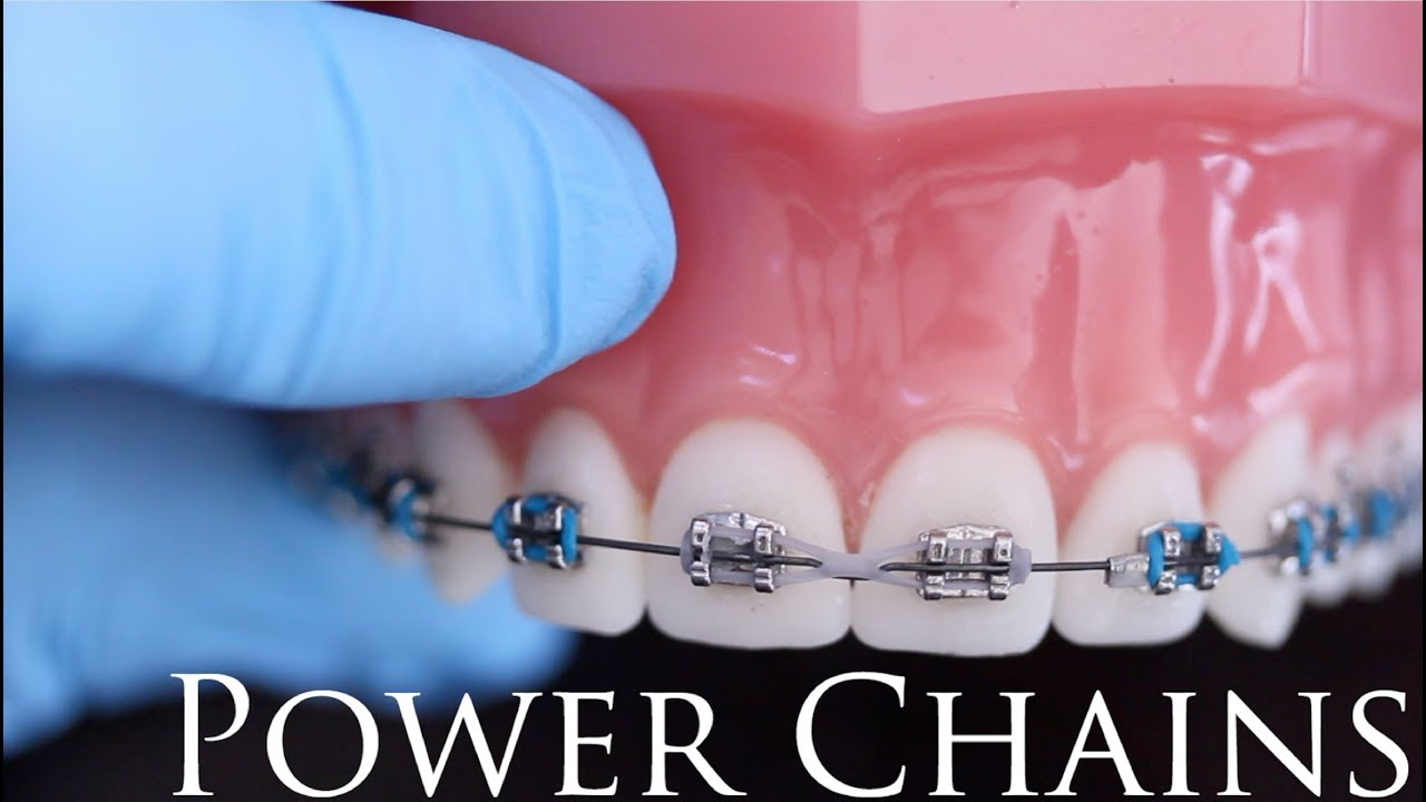 Why Braces Power Chain Are Needed To Fix Your Alignment