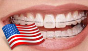 Government Programs for Braces