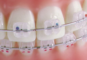 Radiance Clear Braces