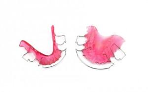 Hawley Orthodontic Retainer